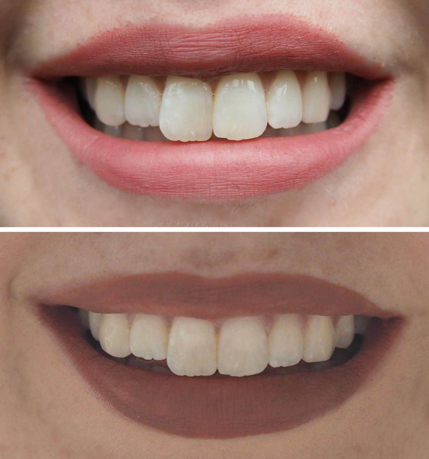 Before and after HDL Clear Aligners