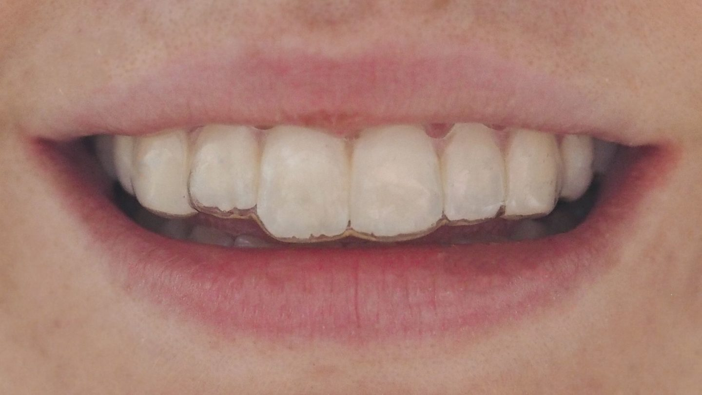 Wearing HDL Clear Aligner Braces